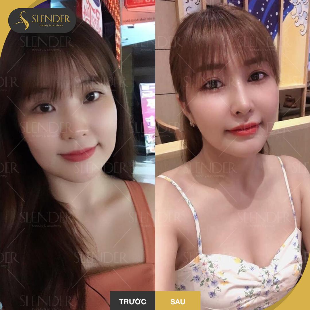 Trở nên xinh đẹp hơn với khuôn mặt V-Line không phẫu thuật
